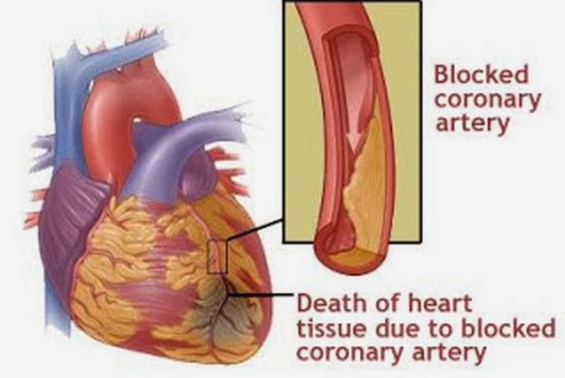 diagram of heart attack