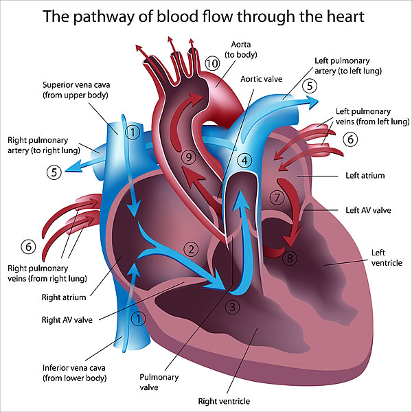 diagram of heart disease