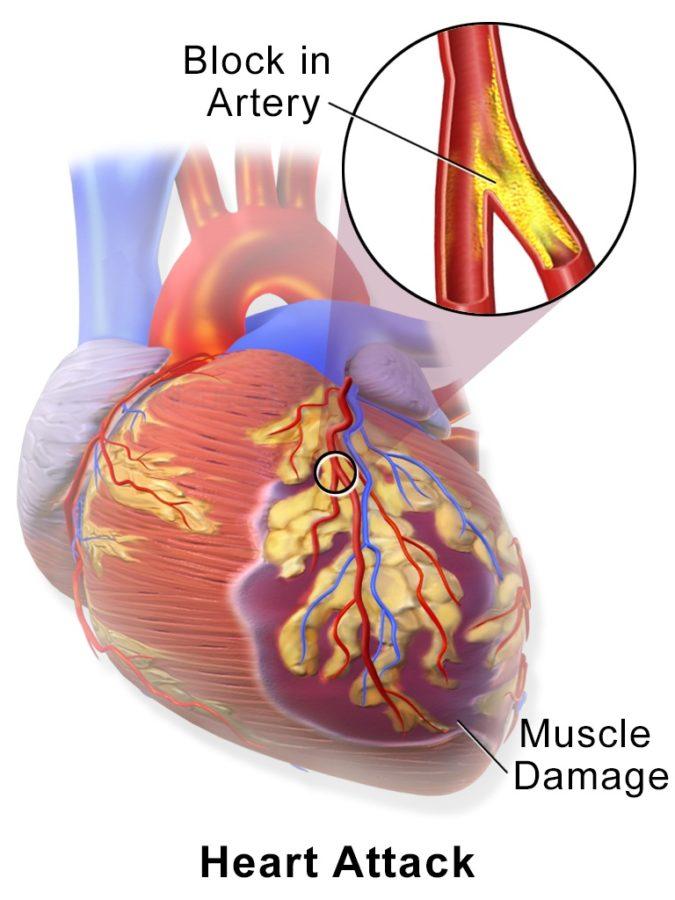 diagram of heart failure