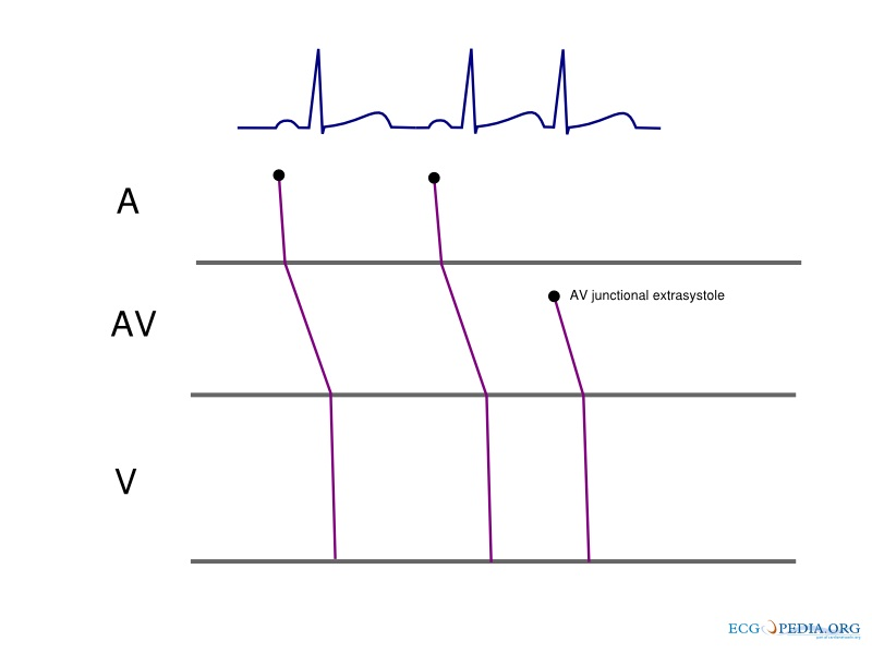 ladder diagram ecg