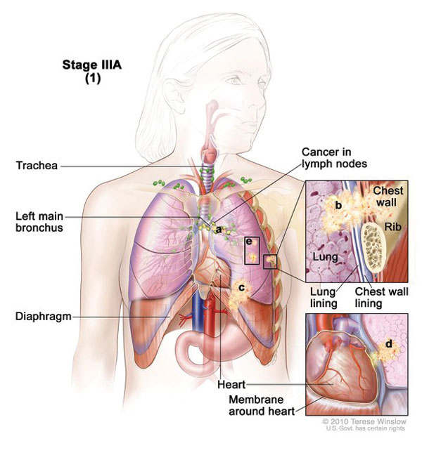 lungs diagram cancer