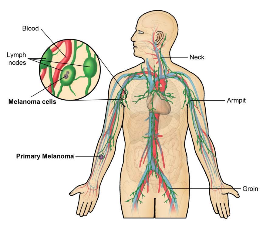 lymph node diagram system