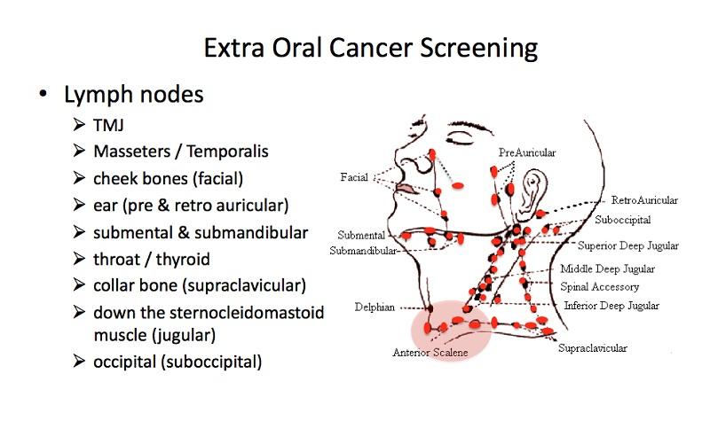 diagram of lymph nodes neck
