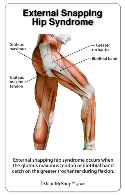 hip diagram syndrome