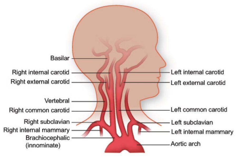 neck diagram arteries