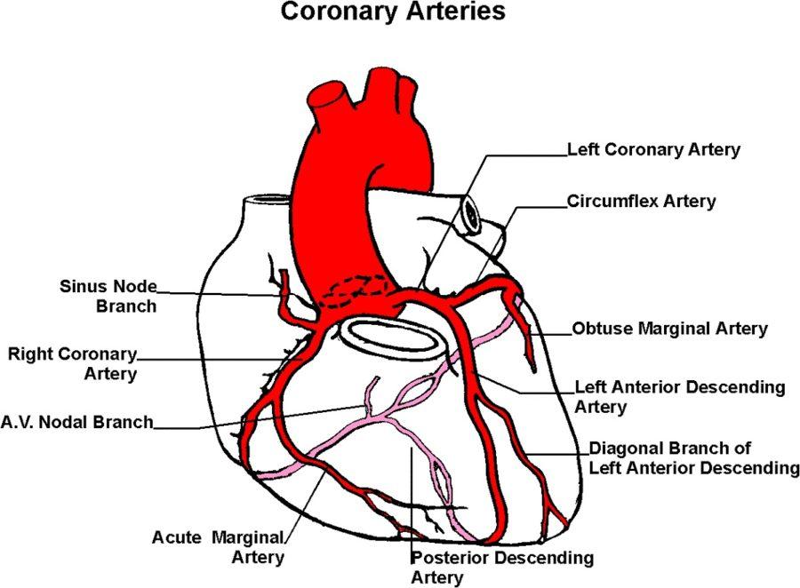 artery diagram coronary