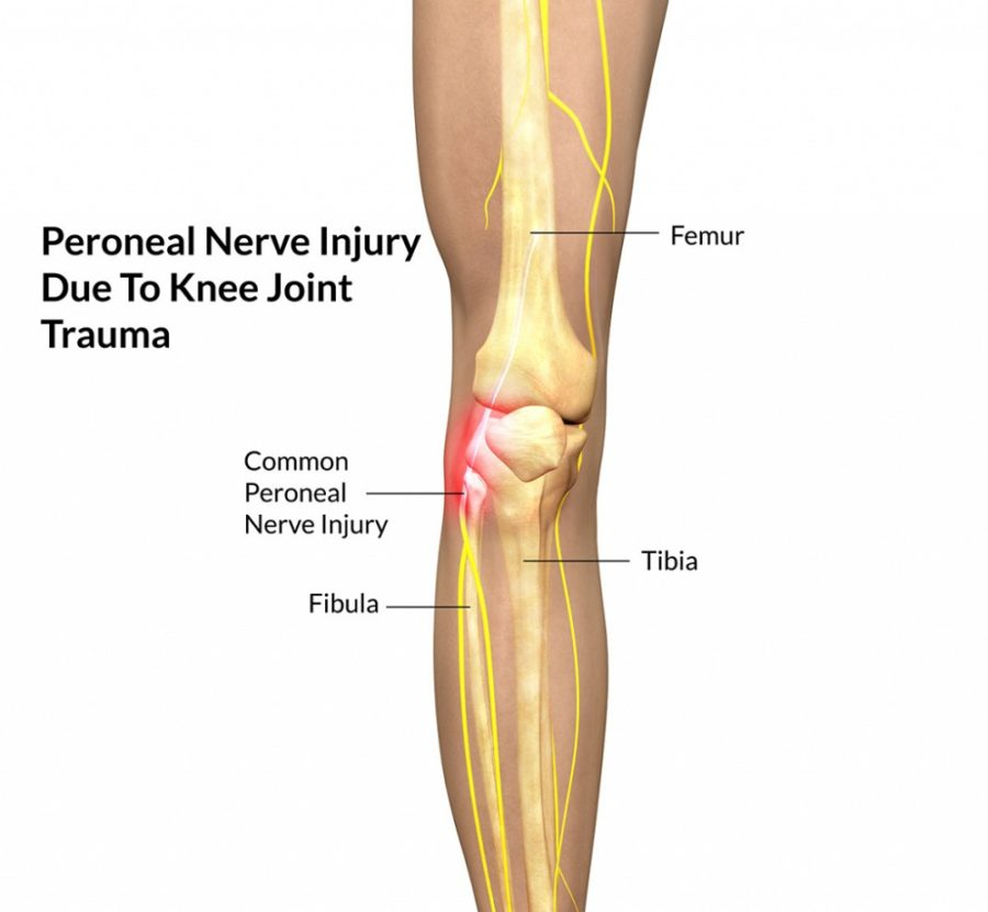 Diagram of Knee Ligaments Injury