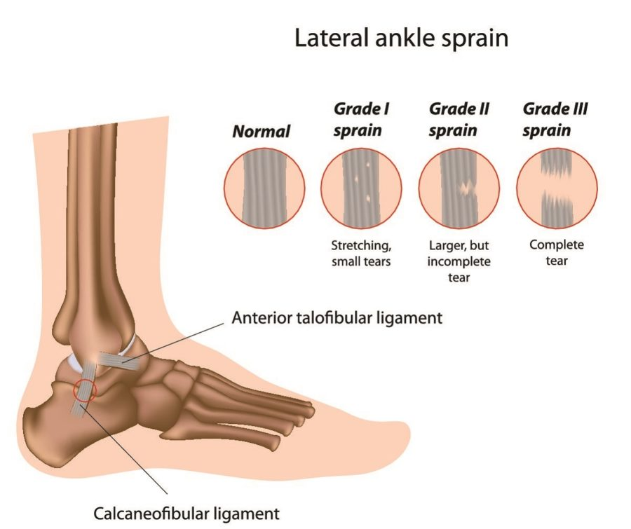 Outside Ankle Diagram