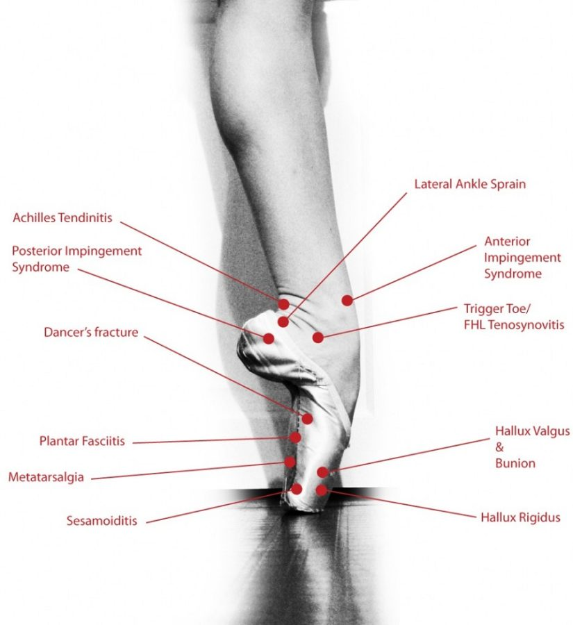 Diagram of Foot Problems