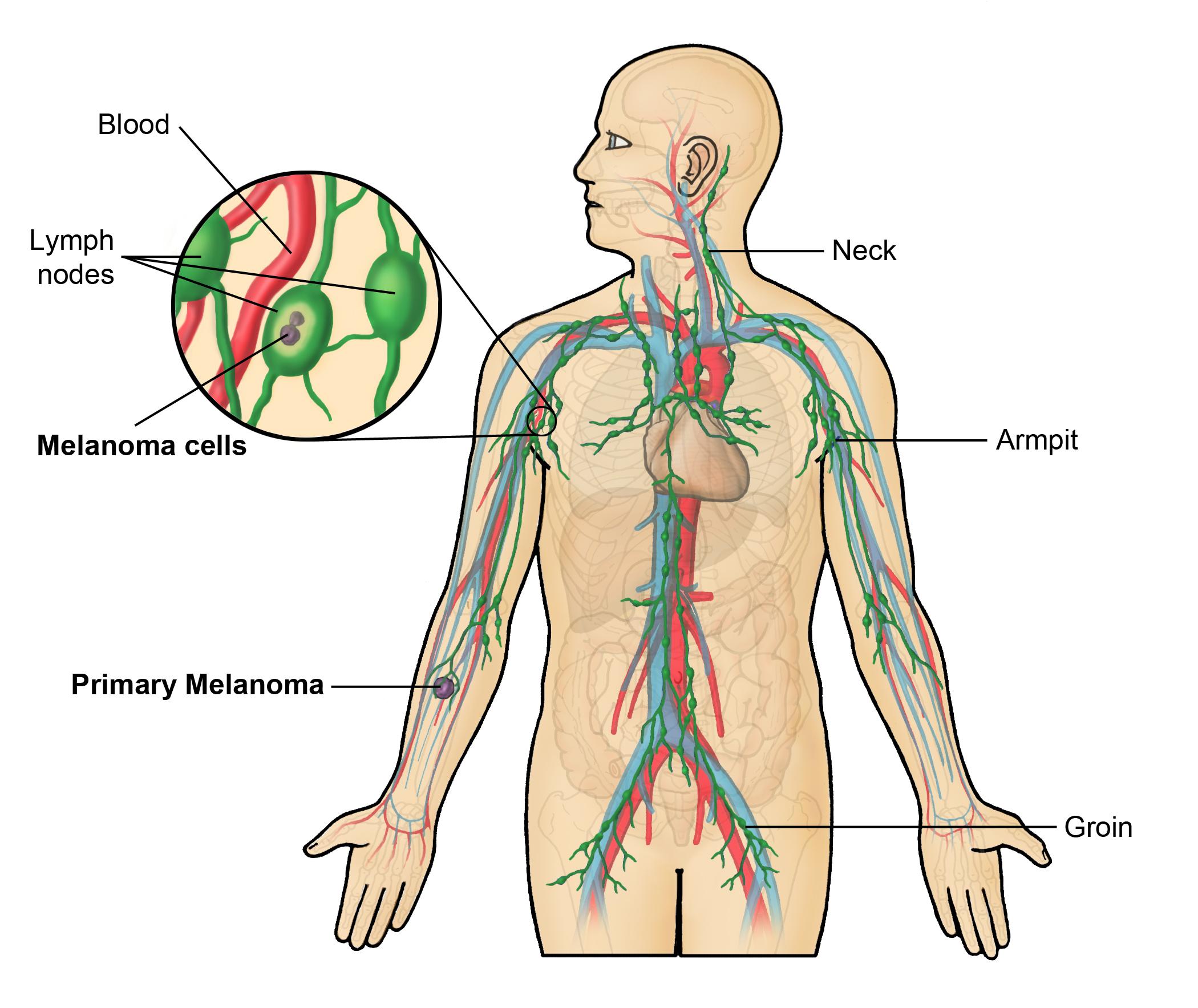 Lymph Nodes Arm Diagram